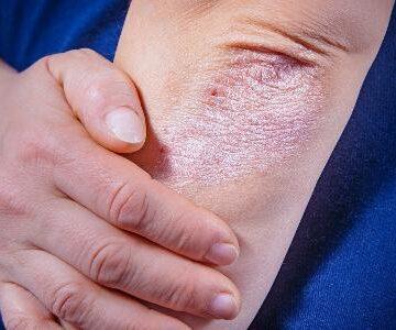 Psoríase: 49% da população acredita que doença é contagiosa, diz pesquisa